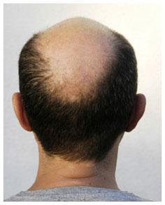 wypadanie włosów u mężczyzn, minoxidil